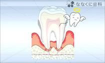 歯周病基礎知識(動画)