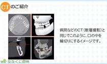 CTとは?(動画)